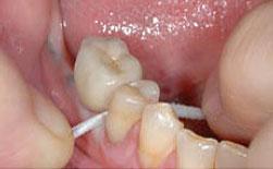 cómo limpiar mi pròtesis dental