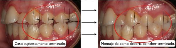 maloclusión, claves para saber si te han hecho un buen estudio de ortodoncia