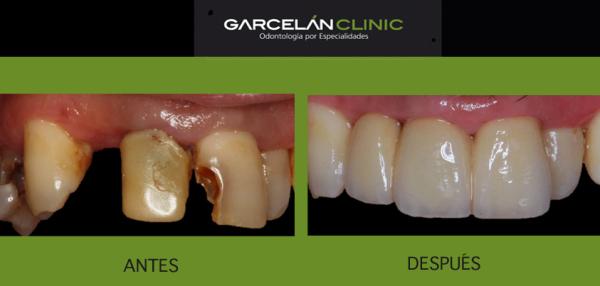 antes y después de tratamiento de protesis fija, como mantener y cuidad tu prótesis fija, prótesis dental en sevilla