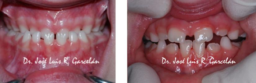 dentista niños en Sevilla