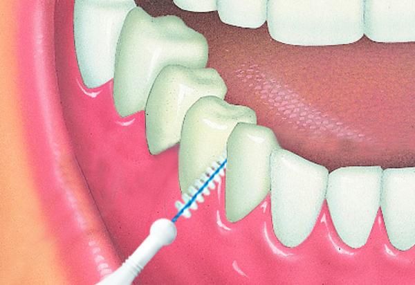 limpieza de protesis fija con cepillo interproximal