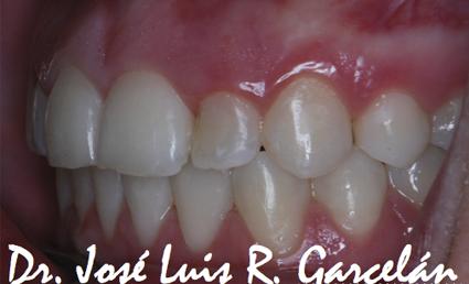 caso clínico después de ortodoncia: retrusión maxilar