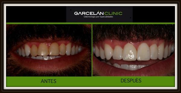 ANTES Y DESPUÉS de blanqueamiento dental, blanqueamiento dental en sevilla