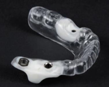Férula guía para implantes dentales, estudio de colocación de implantes dentales en sevilla, implantes dentales sevilla, implante dental sevilla