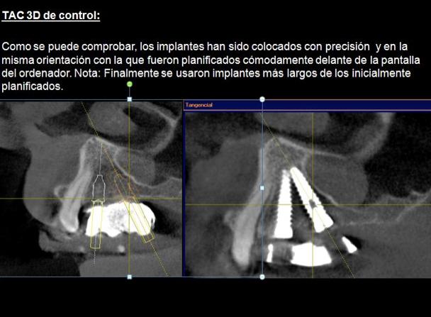 implantes dentales sin cirugía sevilla, estudio de colocación de implantes dentales en sevilla, implantes dentales sevilla, implante dental sevilla