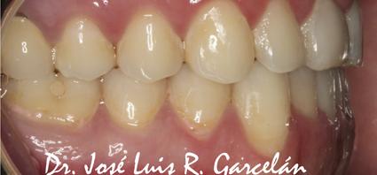 ortodoncia invisible sevilla