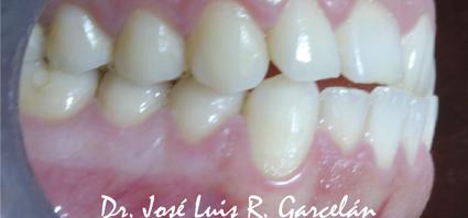 ortodoncia con invisalign sevilla 4