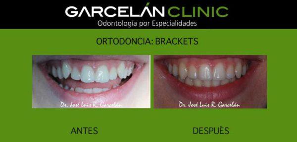 ortodoncia sevilla, brackets sevilla