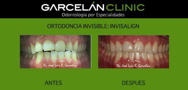 ortodoncia invisible sevilla, invisalign sevilla, ortodoncia sevilla