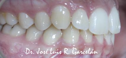 sonrisa lateral derecho antes de ortodoncia