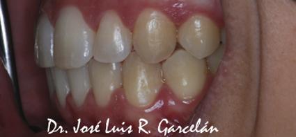 sonrisa lateral derecho tras ortodoncia