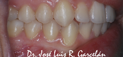 sonrisa tras ortodoncia (izquierda), ortodoncia en sevilla