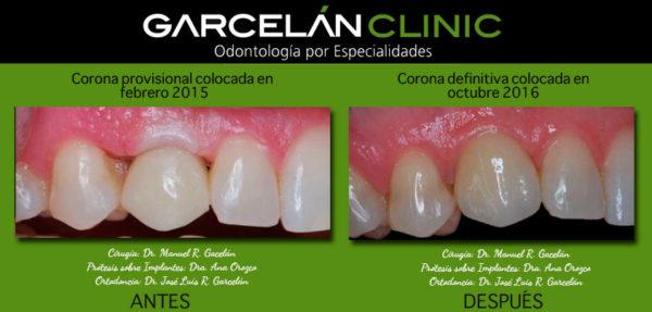 coronas provisionales, dentista sevilla, clínica dental sevilla