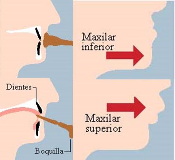 problemas de salud oral en los músicos