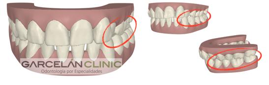 buena oclusión dental, como saber si tengo una buena oclusión dental, ortodoncia sevilla