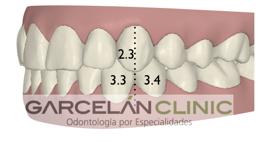 como saber si tengo una buena oclusión dental, ortodoncia sevilla