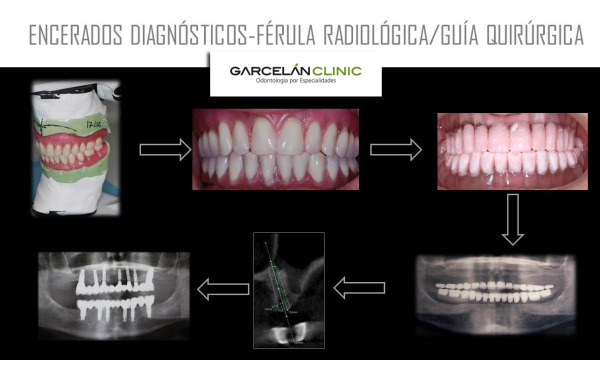 estudio implantes dentales sevilla, estudio de colocación de implantes dentales en sevilla, implantes dentales sevilla, implante dental sevilla
