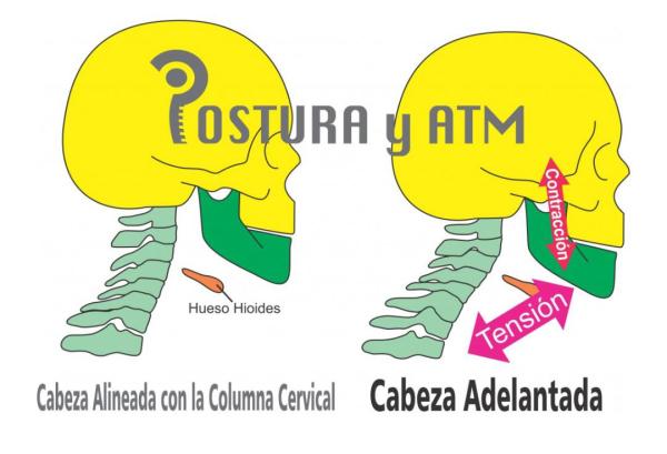 postura del cuello y atm, dolor-de-cuello, postura del cuello y dolor mandibular