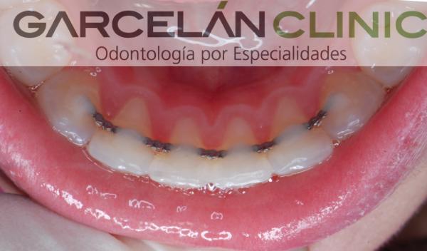 La retención en ortodoncia, ortodoncia sevilla, dentista sevilla, clinica dental sevilla