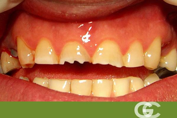 dientes con bruxidmo, dentista sevilla, dentistas sevilla, clínica dental sevilla