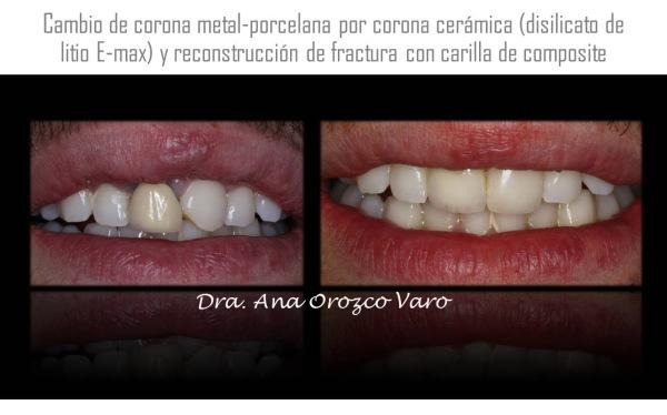 fundas dentales en sevilla