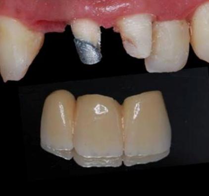 Puente cerámico de tres piezas. Obsérvese la cantidad de diente que hemos tenido que eliminar)