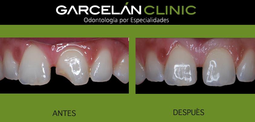 odontologia minimamente invasiva