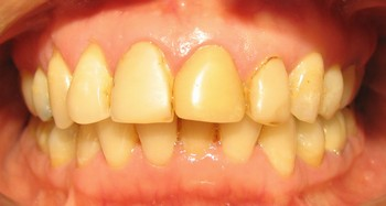 dientes amarillos por tabaco