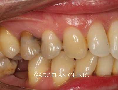 tinción de dientes por amalgama de materiales de endodoncia
