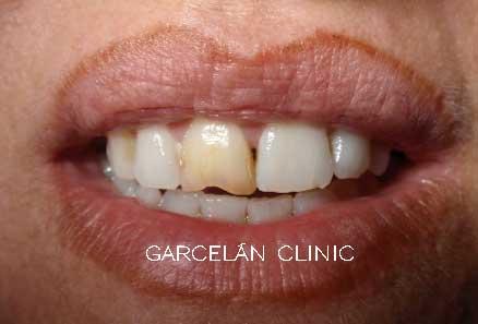 calcificación de un diente por traumatismo