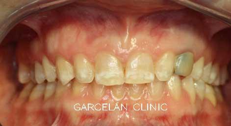 tinción de dientes por fluorisis