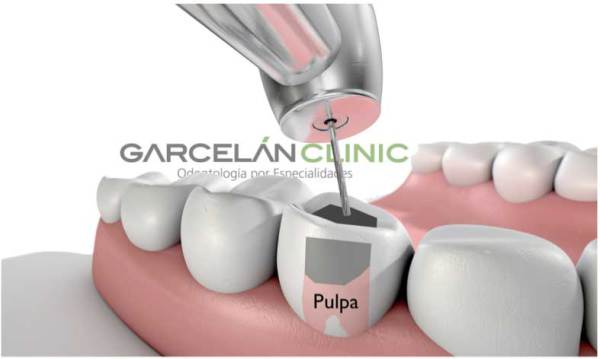 realizar una endodoncia correctamente, endodoncia realizada correctamente, endodoncia sevilla, dentista sevilla, clinica dental sevilla