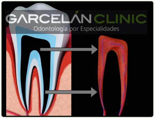 como saber si me han hecho una ortodoncia correctamente, endodoncia realizada correctamente, endodoncia sevilla, dentista sevilla, clinica dental sevilla