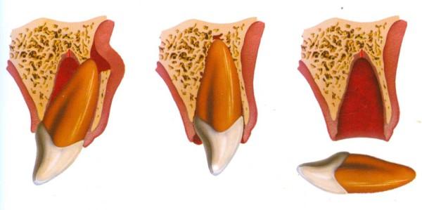 traumatismo dental en niños, avulsión dentaria, caída de un diente, golpe en la boca
