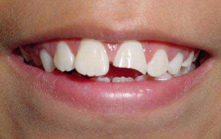 traumatismo dental en niños clinica dental sevilla, golpe en los dientes de niños, golpe en la boca