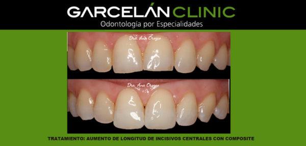 alargamiento de incisivos con composite, dentista seviilla, clinica dental sevilla
