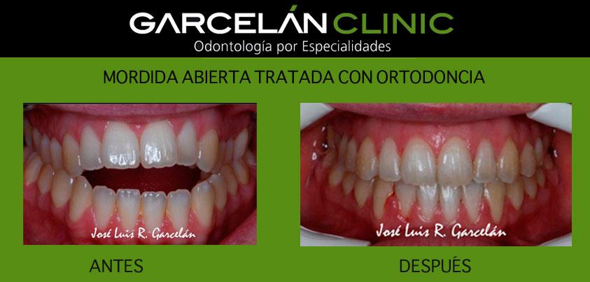 ortodoncia sevilla, dentista sevilla