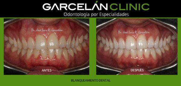 blanqueamiento dental en sevilla, dentista en sevilla, clinica dental en sevilla