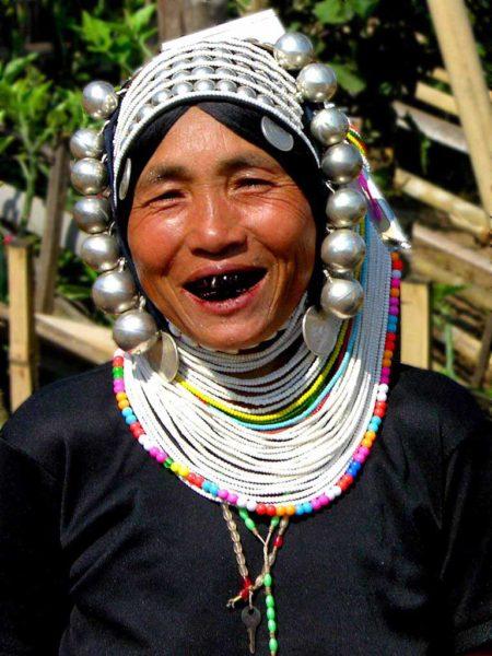 dientes-negros-2