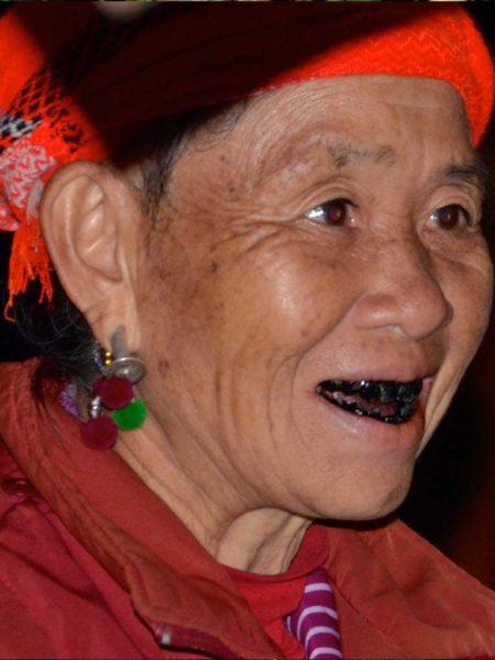 dientes-negros