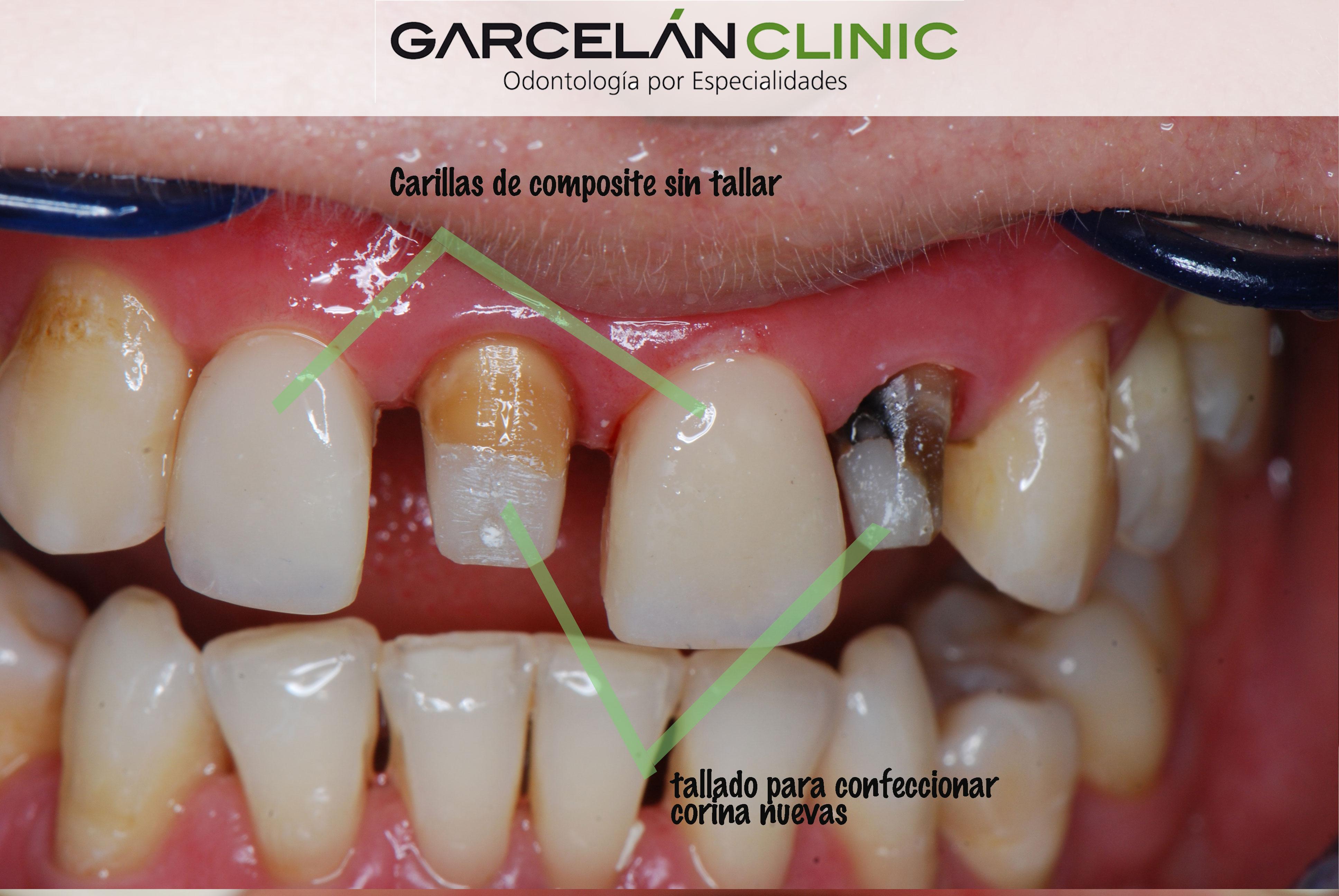 Carillas Dentales En Sevilla Carillas De Porcelana Carillas De Composite
