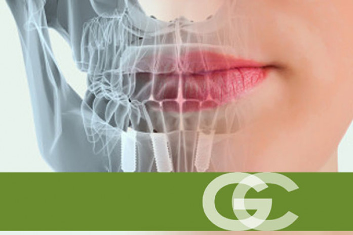implantes dentales sevilla, implante dental sevilla, dentista sevilla, clinica dental sevilla