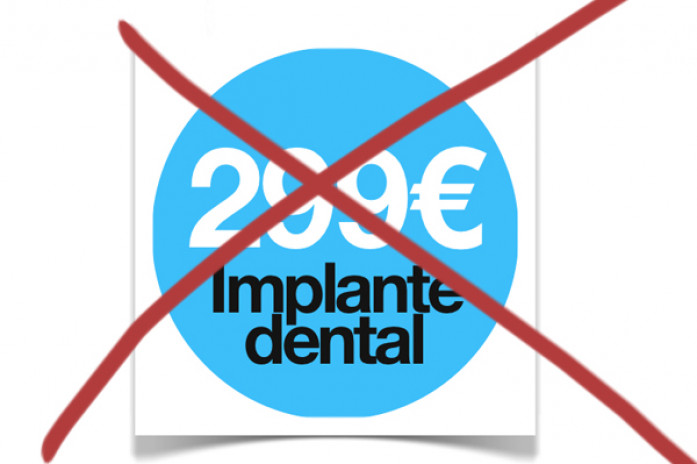 Implante Dental no puede costar 299 euros, implantes sevilla, implantes dentales sevilla